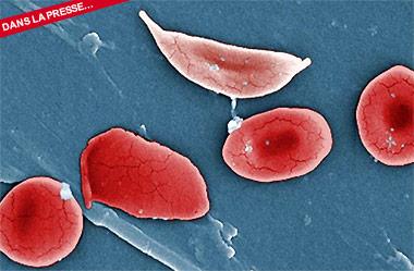 Drépanocytose: rémission chez le premier patient traité par thérapie génique