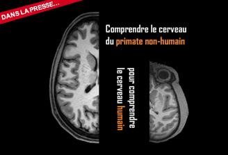 Une base de données internationale pour mutualiser l'imagerie cérébrale de primates