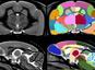 Révision d'un dogme sur l'évolution du cerveau chez les primates