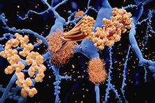 Des facteurs de la maladie d'Alzheimer transmissibles: un nouveau regard sur cette pathologie