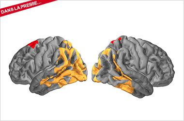 Une nouvelle méthode plus efficace pour diagnostiquer Alzheimer