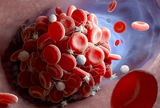 Glycémie et pronostic suite à un AVC : quel lien?