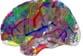 Les symptômes psychotiques sont associés à une mauvaise diffusion de l'information dans le cerveau