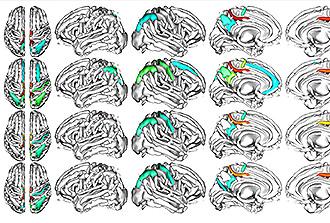 Génétique et sillons cérébraux : la cohorte UK Biobank a parlé !