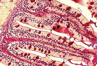 Covid-19 : le microbiome intestinal durablement affecté