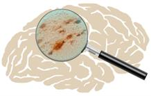 Stealthy agents in Alzheimer's disease