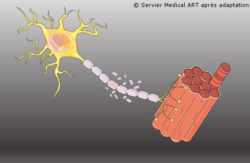 The peripheral nervous system is also altered in multiple sclerosis