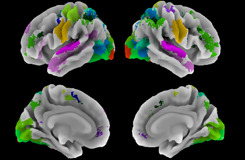 Analysis of multitask functional MRI data for the establishment of a neurocognitive atlas of the human brain