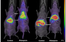 Multimodal imaging to quantify biliary drug excretion