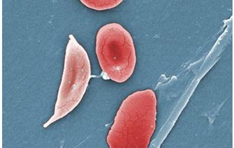 Sickle cell disease: remission of the signs of the disease in the first patient in the world treated with gene therapy
